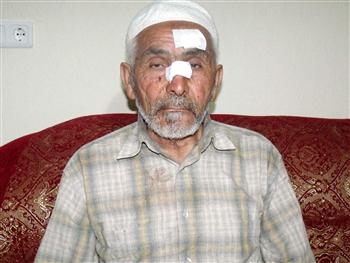 Victimized Arif Ekiz filed an official complaint against the rascal imam who attacked him