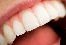 Photo of Egzersiz ve Diş Sağlığı